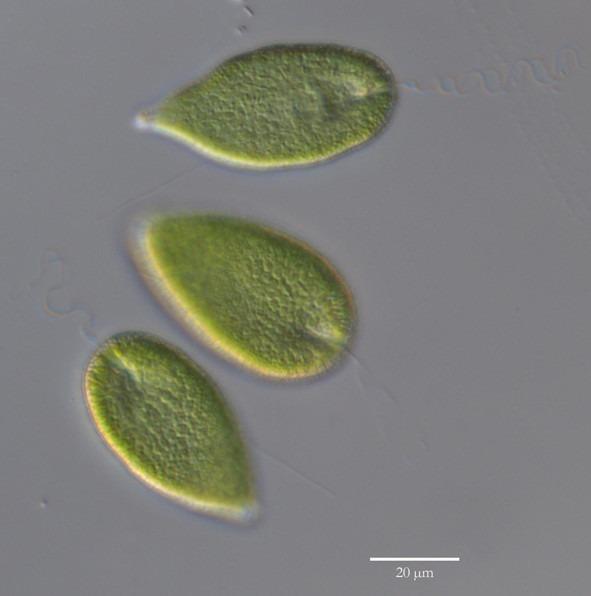 Flagellaten Gonyostomum semen