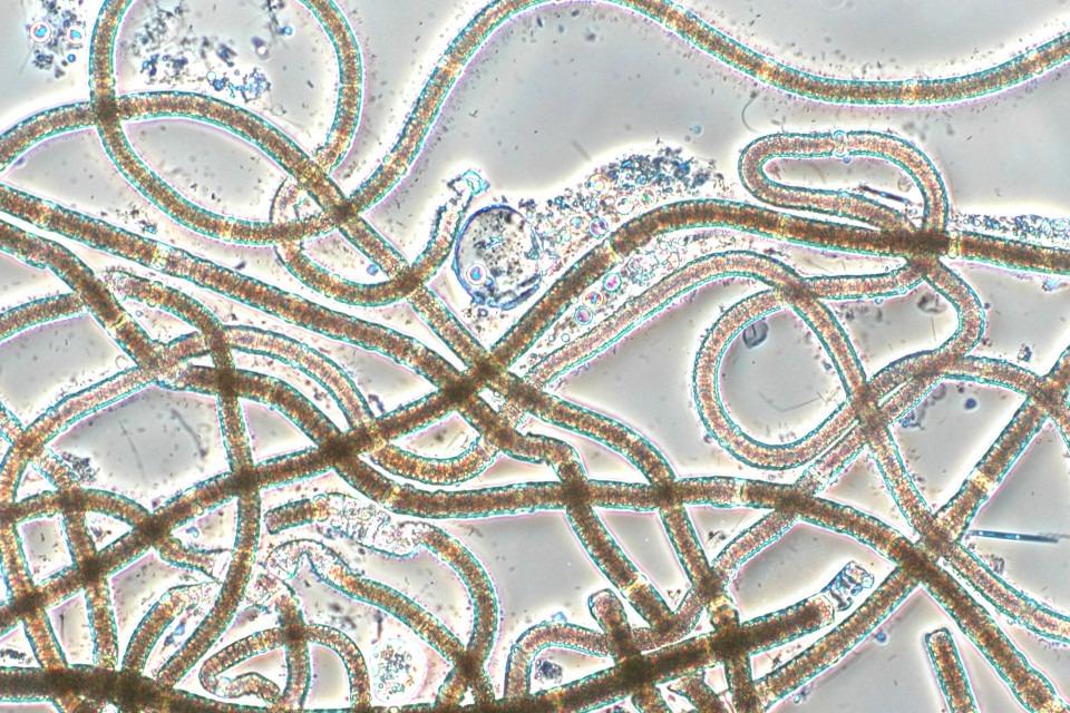 Cyanobakterie Nodularia spumigena