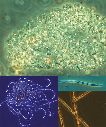 Cyanobakterier kan anta många olika former. Foto: Helena Höglander
